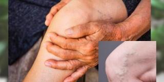 Cum se justifica frecventa varicelor la persoanele in etate?